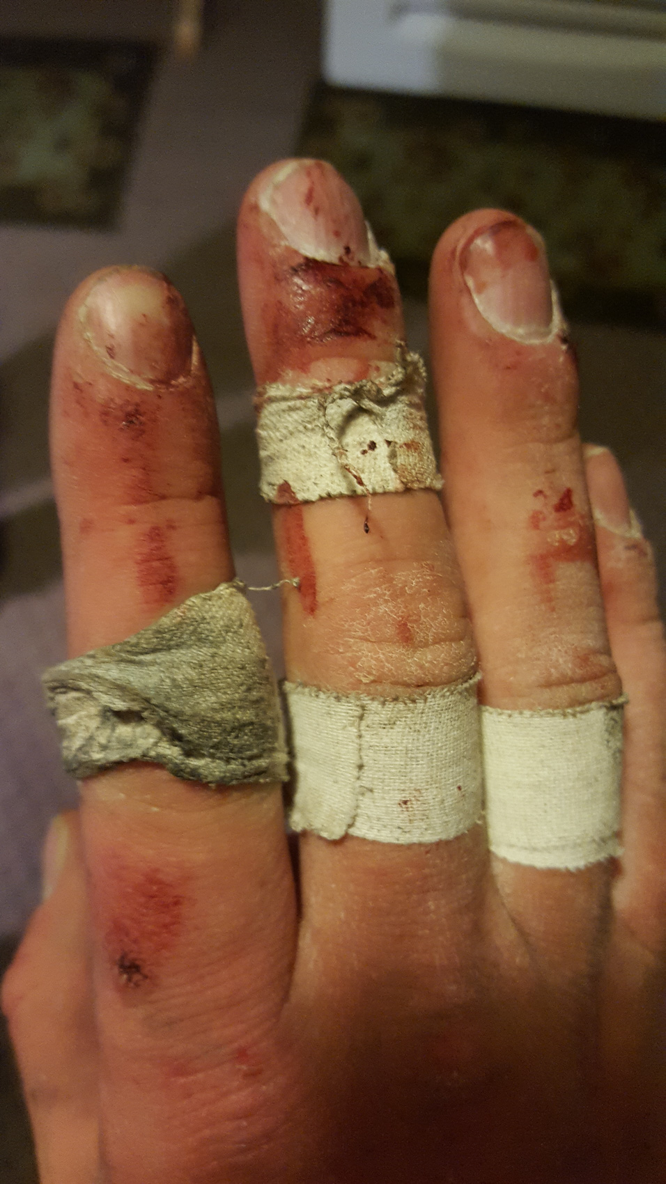fingers wrecked